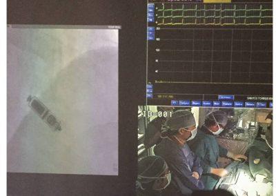 Implante marcapasos sin cables año 2015