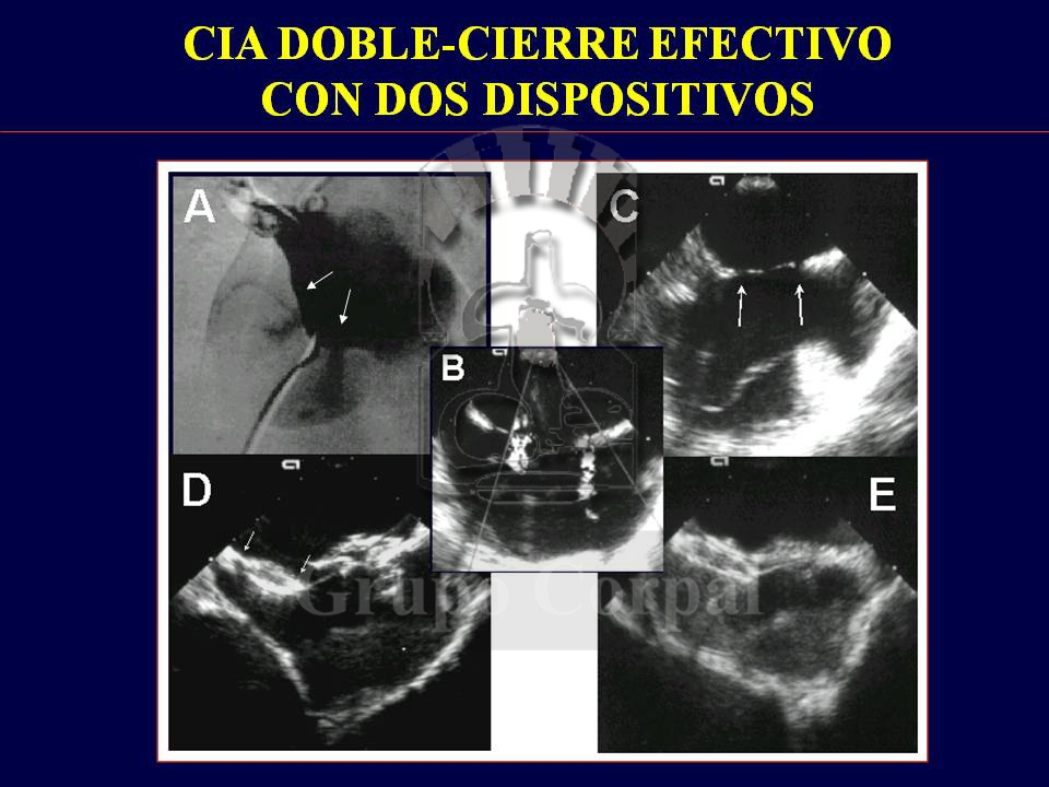 Percutaneous closure of Atrial Septal Defect (ASD)