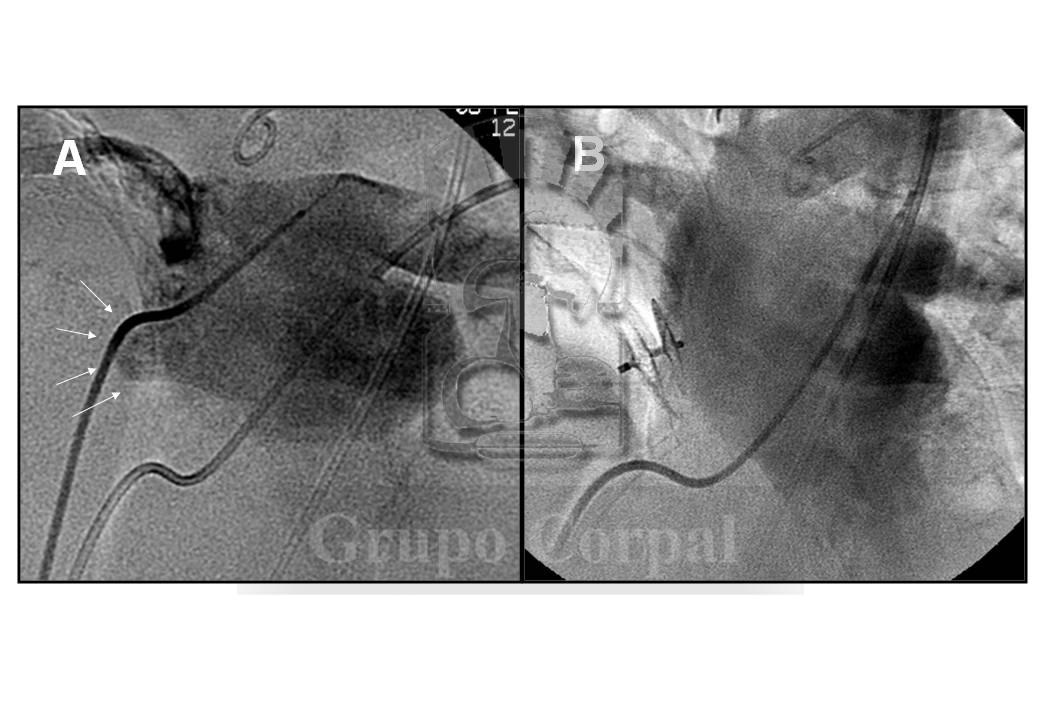 Patent Foramen Ovale Closure