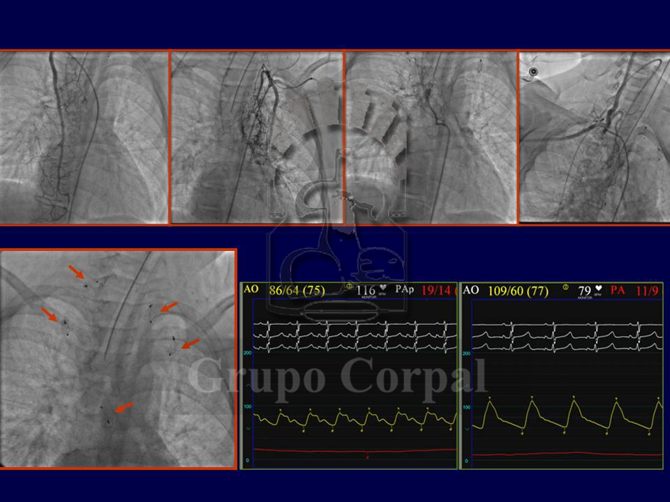 Percutaneous management of complex congenital cardiopathies