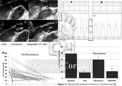 Dilatación de estenosis subaórtica de membrana, figura 6