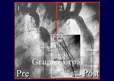 Implantación de stent en la coartación de aorta imagen1