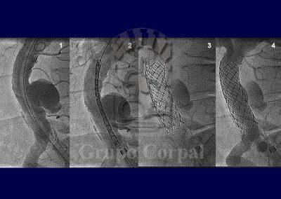 Aortic aneurysms, image 2