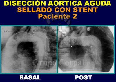 Aortic aneurysm, image 3
