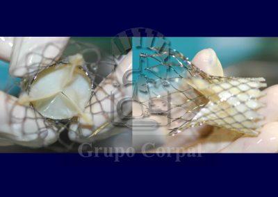 implantacion de válvula aórtica