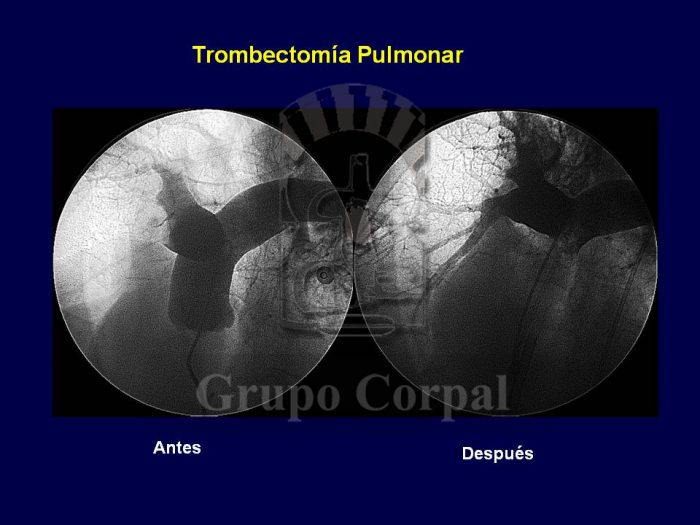 Pulmonary Thrombectomy , before and after