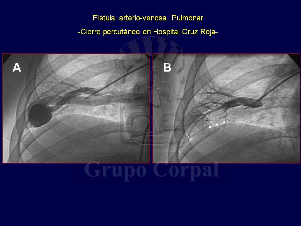 Presencia congénita de una fístula arteriovenosa pulmonar con formación de aneurisma