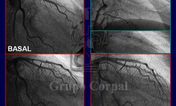 Coronariografía Selectiva en el Infarto de Miocardio