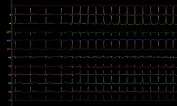 Síndrome de Wolff-Parkinson-White (WPW) Estudio electrofisiológico y ablación
