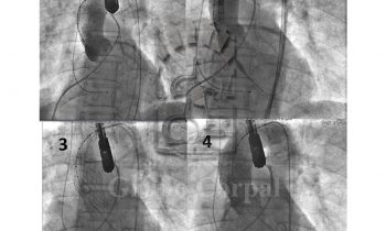 Implante percutáneo de válvula aórtica