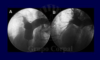 Tratamiento percutáneo del embolismo pulmonar agudo