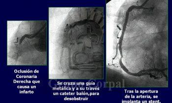 Cateterismo en paciente con infarto agudo de miocardio