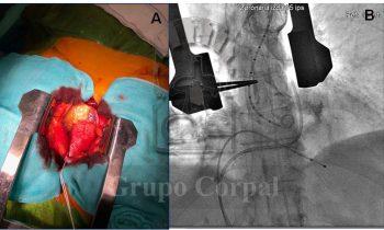 Implantación prótesis CoreValve en paciente con estenosis aórtica