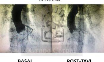Paciente con Estenosis Aórtica degenerativa y severa