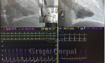 Implante de 2 Mitraclips. Prolapso de valva posterior.
