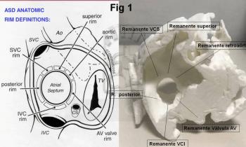 Cierre de CIA en paciente con hipertensión pulmonar. Impresión 3D TAC