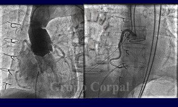 Fístula post-quirúrgica entre seno de Valsalva y ventrículo derecho