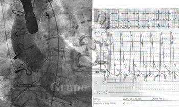 Implante de válvula aórtica con revascularización de tronco coronario