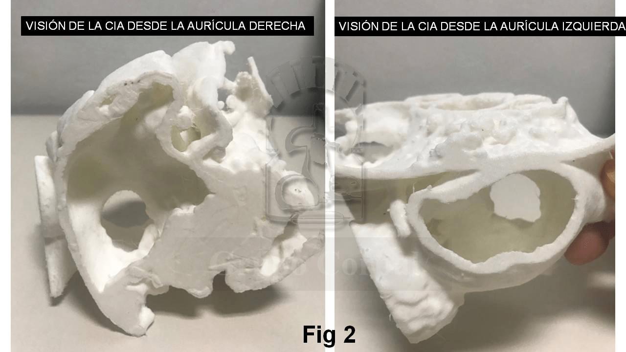 Visión 3D desde ambos lados, pudiéndose hasta palpar los remanentes e incluso intentar una simulación virtual del posible implante percutáneo.