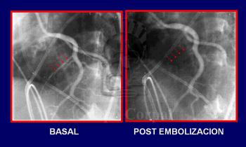Miocardiopatía Hipertrófica tratada con embolización septal