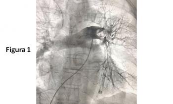 Aspiración trombótica en el Embolismo Pulmonar Agudo