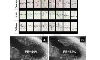 Recuperación en paciente con infarto de miocardio