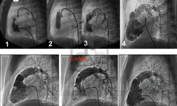 Atresia Pulmonar con Septo Integro