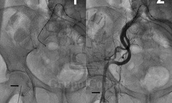 Implante de Válvula Aórtica percutánea (CoreValve)