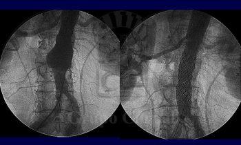 Aneurisma de aorta abdominal infra-renal