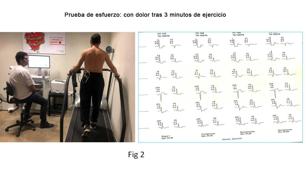 Prueba de esfuerzo: con dolor tras tres minutos de ejercicio