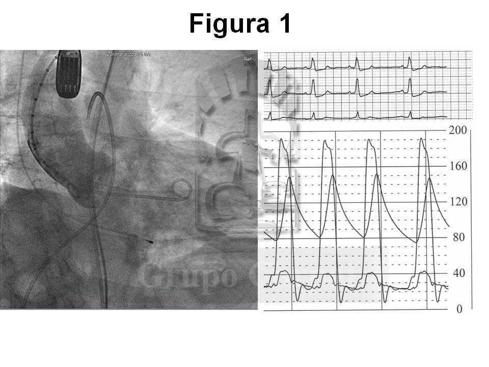 Aortografía en condiciones basales
