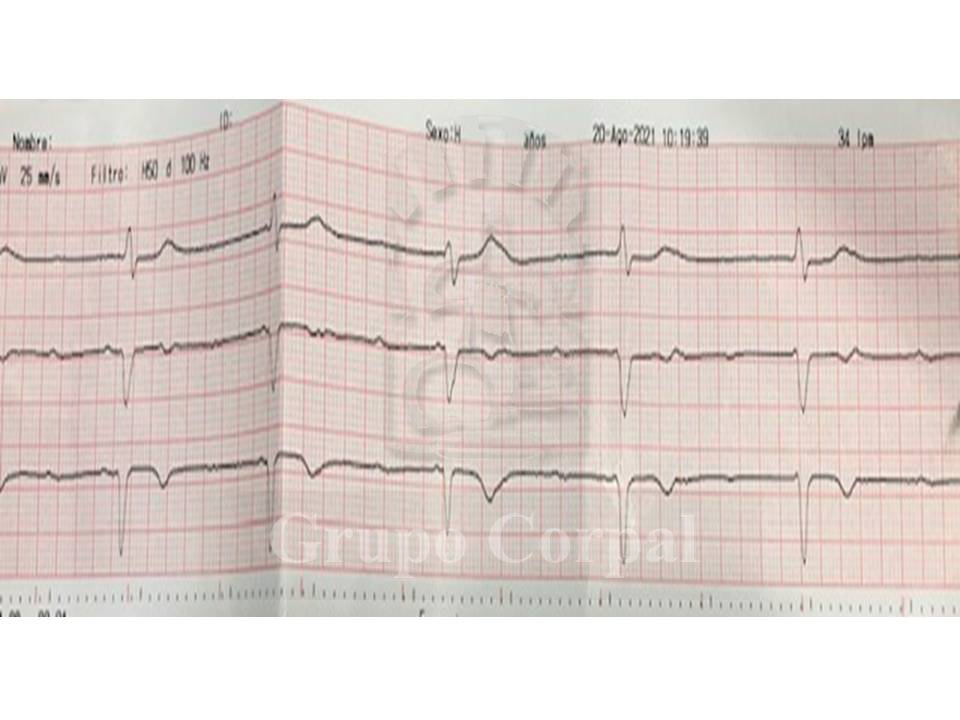 Electrocardiograma a la llegada al hospital
