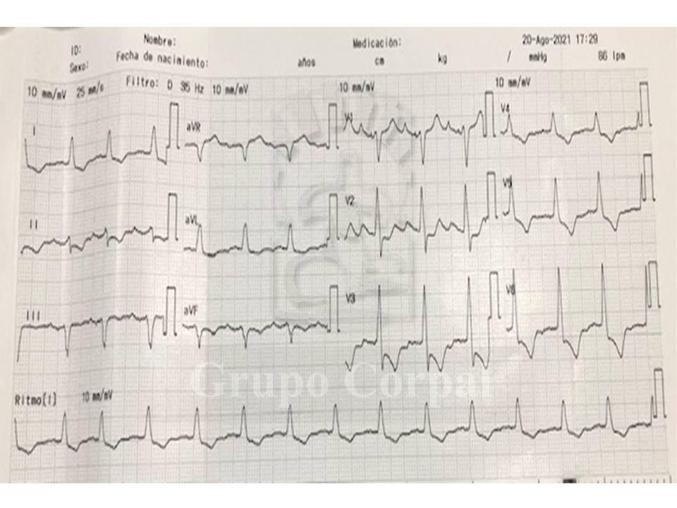 Electrocardiograma tras el implante